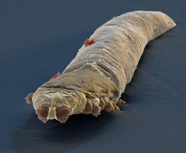 scapa de paraziti subcutanati